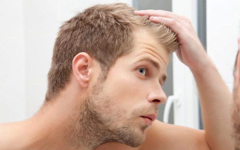 balding in your 20s as a male